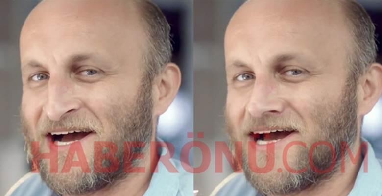 25 ünlüye burun ameliyatı yaptık! İşte öncesi ve sonrası!